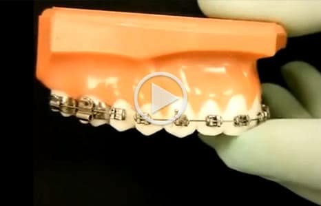 Emergency Care Video Orthodontic Associates of New England Nashua NH