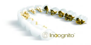 Incognito Braces at Orthodontic Associates of New England in Nashua NH